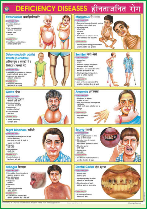 deficiency disease Micronutrient deficiency disease - anaemia, goitre and cretinism, xerohthalmia - nutrient deficiency, clinical signs and symptoms of the disease, populations at risk of becoming deficient, preventive behaviours for a healthy family.